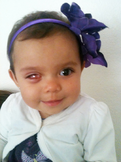 Jocelyn Zamarripa, 10 months old, lost her right eye to retinoblastoma, a rare cancer. A clear insert fills the empty eye socket and will hold her eye open until she can have a glass eye inserted. (Zamarripa family photo)