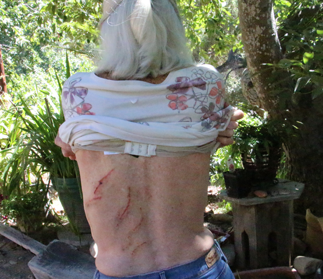 Ken Wilson Ford >> Carpinteria Woman Wounded But Alive After Being Attacked By Black Bear