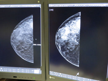 With the Santa Barbara Women's Imaging Center's new 3D mammography system, improved imaging enables the detection of a small cancer on a patient's breast, indicated by the small, white circle in the left image. (Gina Potthoff / Noozhawk photo)